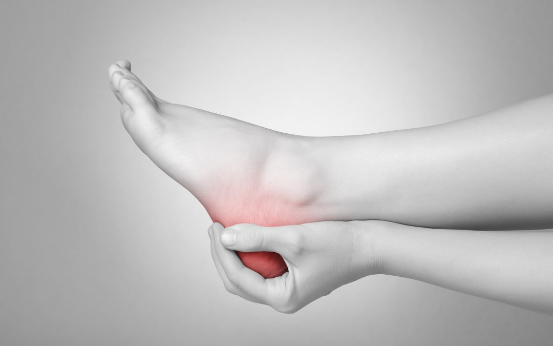 The Most Common Cause of Heel Pain: Plantar Fasciitis